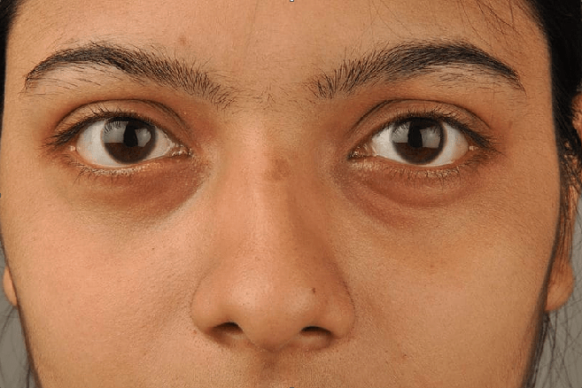 Home Remedies: Use these foods to get rid of dark circles under the eyes