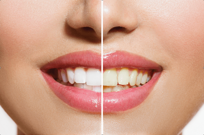Whitening of Teeth is troubled by yellowing of teeth