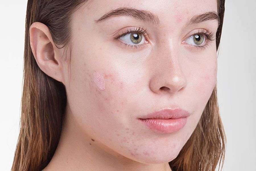 Lifestyle: Know how Strass affects our face?