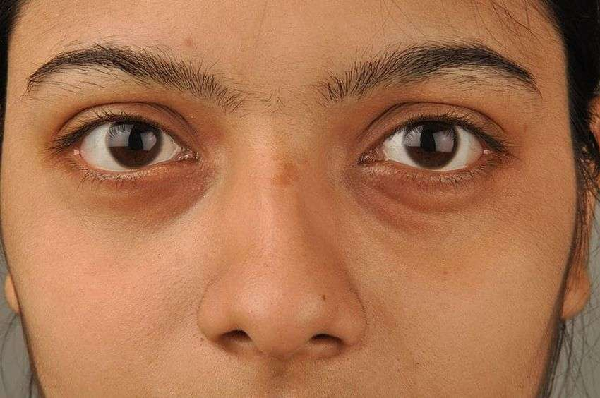 Lifestyle: Know how Strasse affects our face?