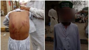 Pakistan: 13-year-old child was 'tortured' by the Imam of the mosque, the police arrested him for creating a ruckus